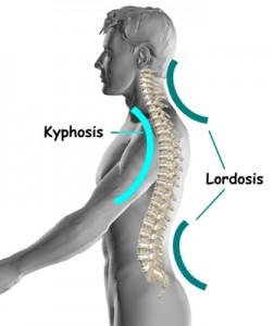 anatomy Kyphosis yoga